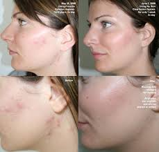clear-acne-in-skin
